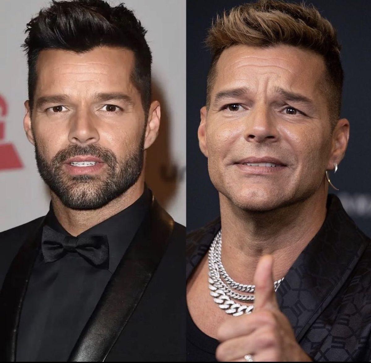 Ricky Martin cumple 50 y el botox ayuda... o destruye